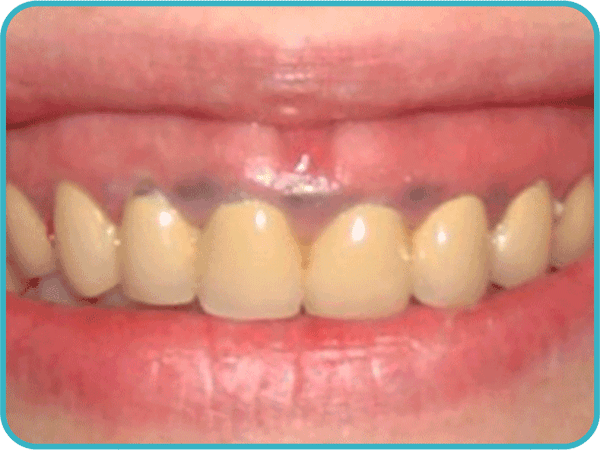Отбеливание зубов в калуге цена